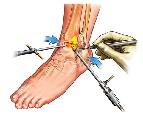 Ankle Arthroscopy and Ankle Ligament Reconstruction   Murdoch ...