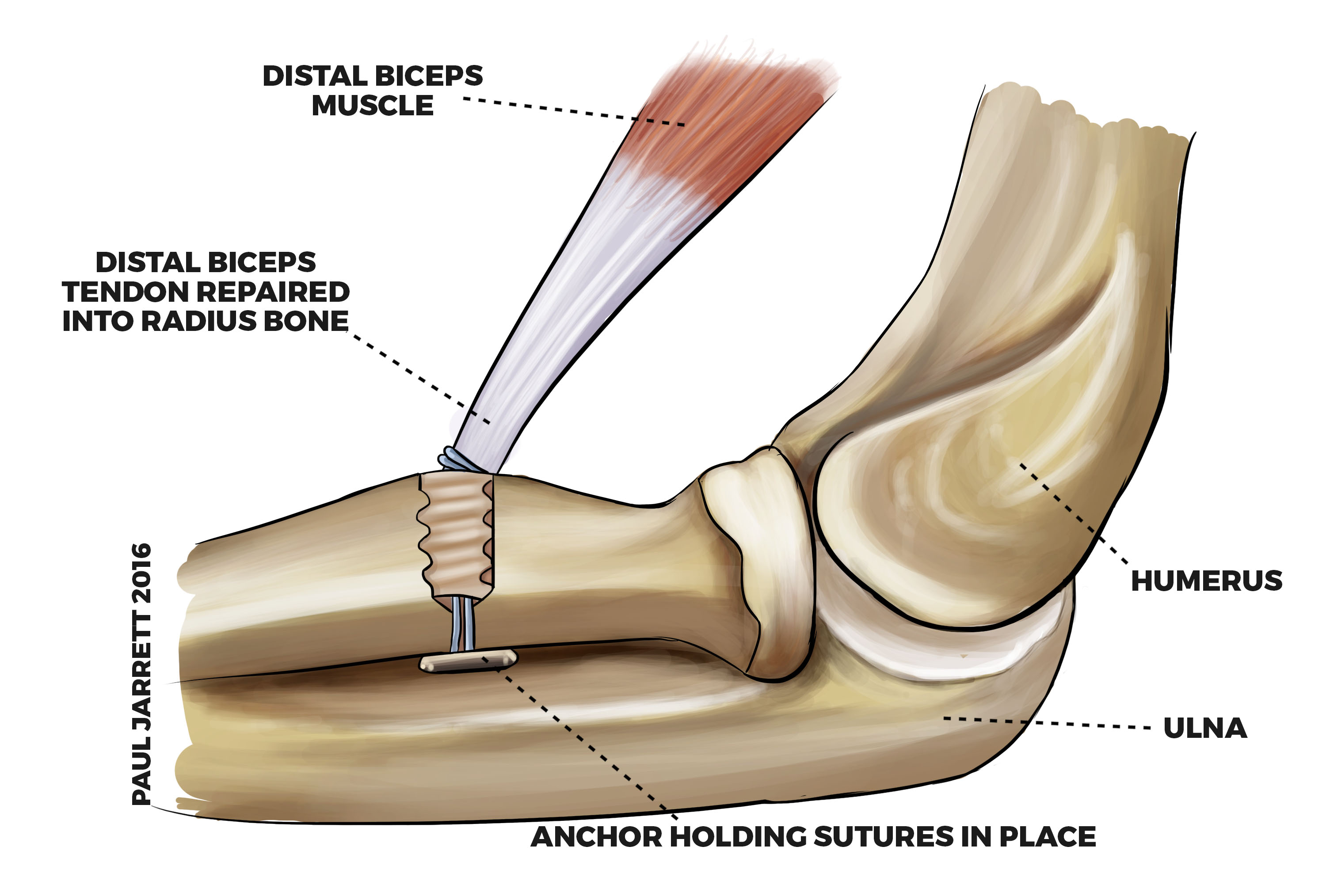 Distal Biceps Tendon Rupture / Avulsion | Murdoch Orthopaedic Clinic