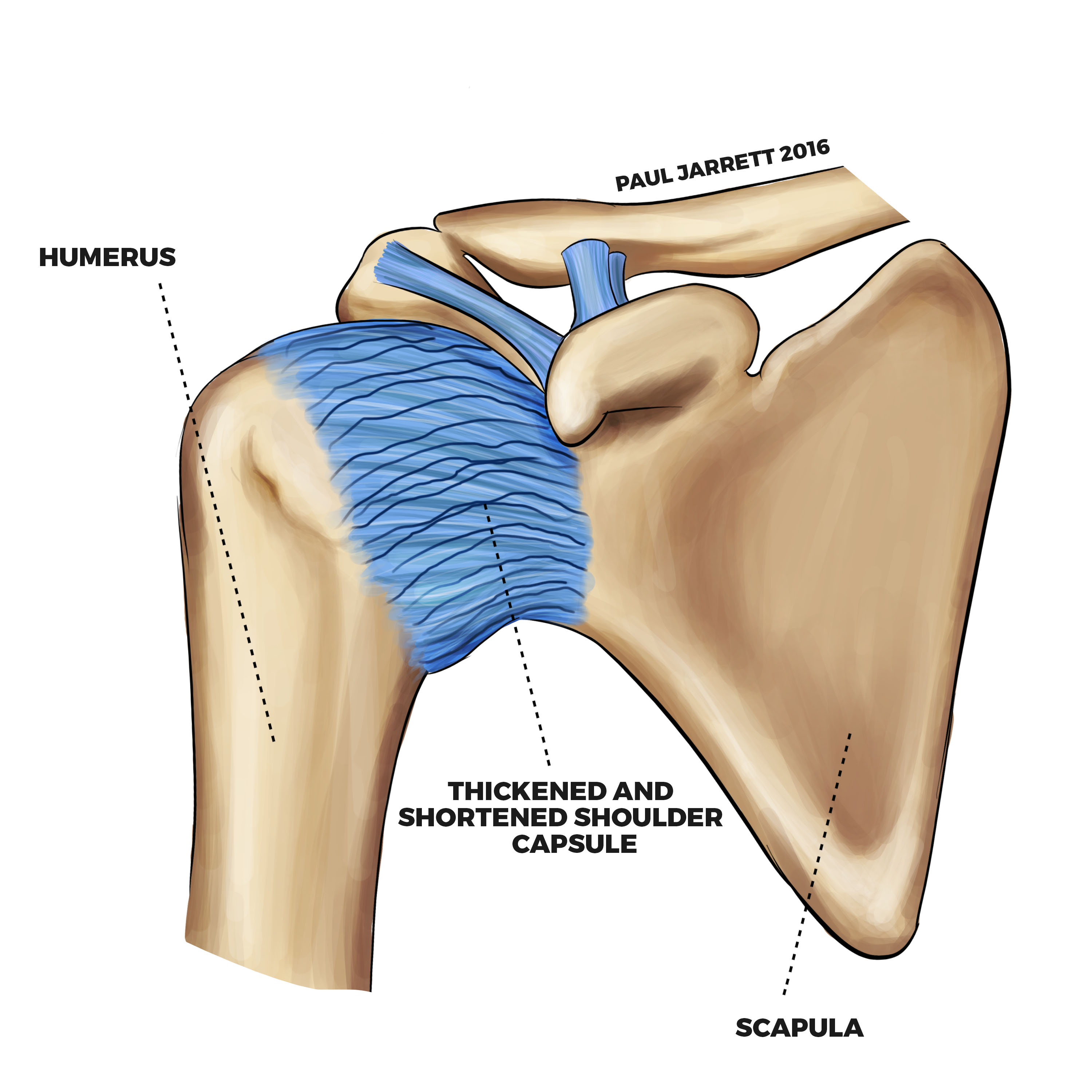 how to help a frozen shoulder