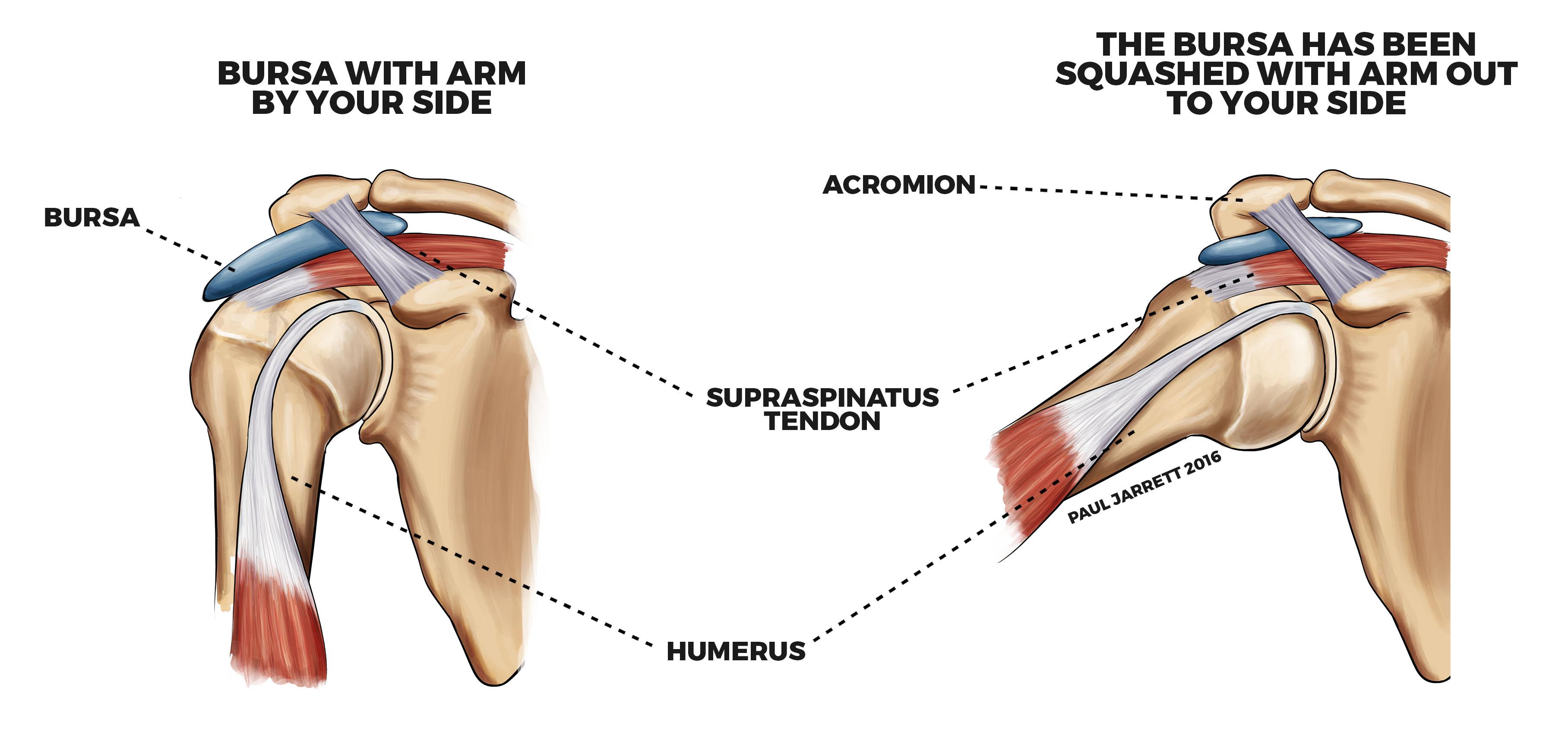 Shoulder Impingement Bursitis Murdoch Orthopaedic Clinic