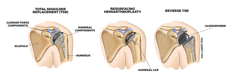Shoulder Arthritis Murdoch Orthopaedic Clinic