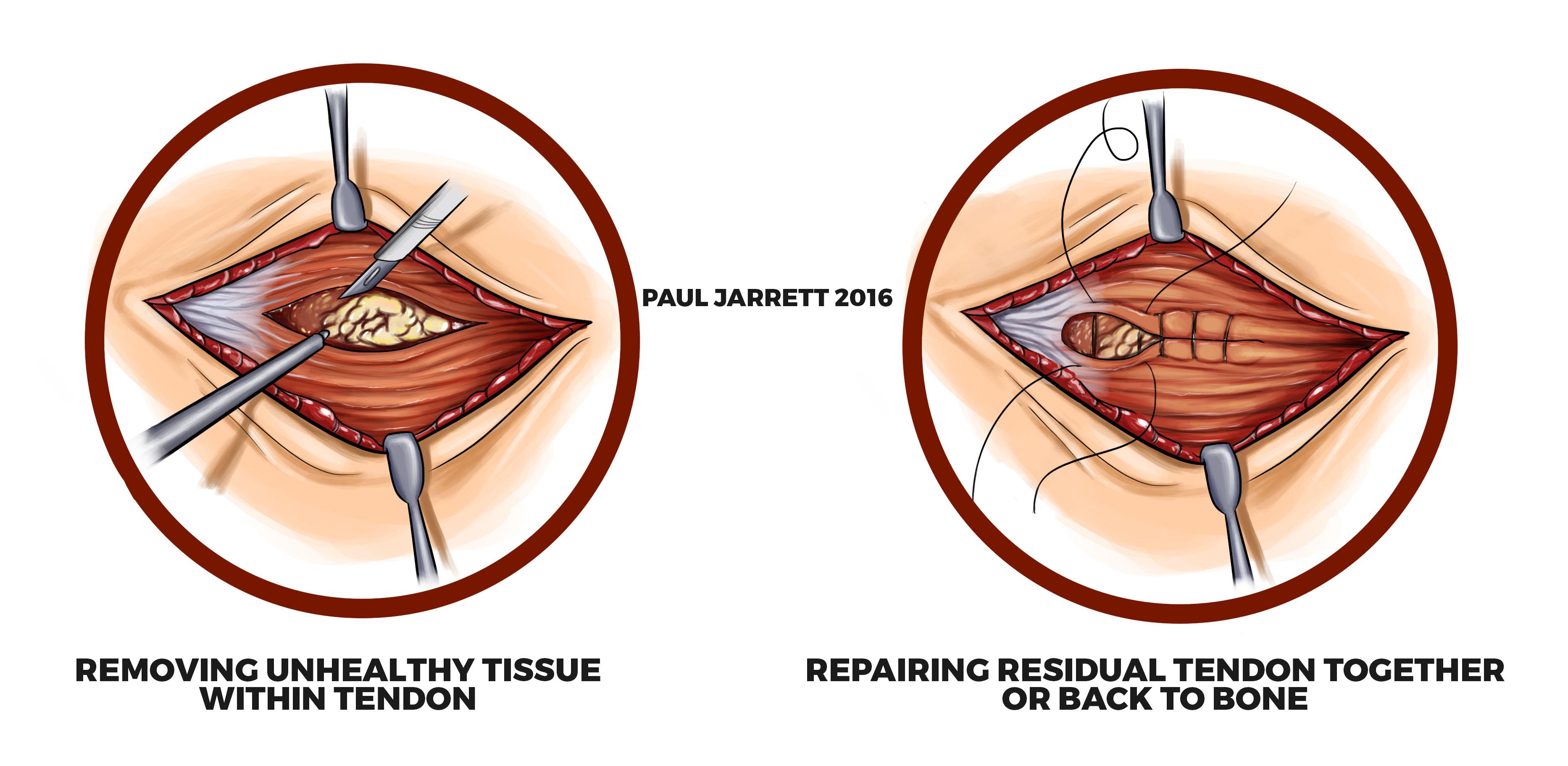 Epicondylitis/Tennis Elbow/Golfer\'s Elbow | Murdoch Orthopaedic Clinic