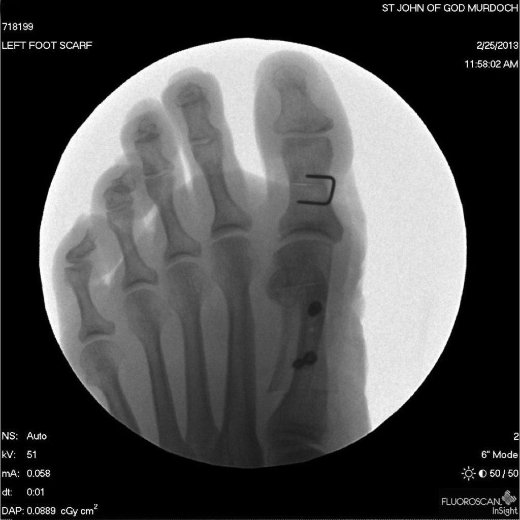 Bunion surgery Murdoch Orthopaedic