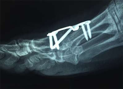 arthritis surgery Murdoch Orthopaedic