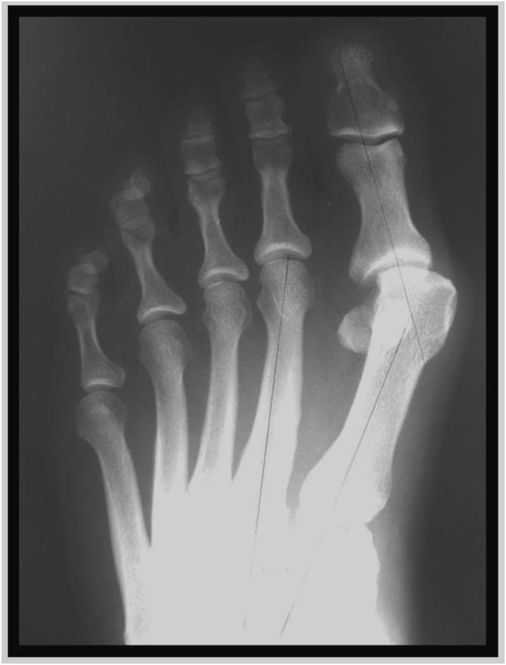 Bunion Treatment Murdoch Orthopaedic