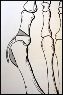 Akin Murdoch Orthopaedic