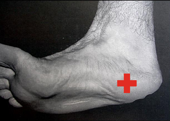 It's just a graphic of Plantar Fasciitis Exercises Printable with sesamoiditis treatment
