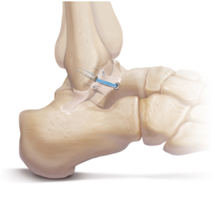 Ankle Arthroscopy and Ankle Ligament Reconstruction
