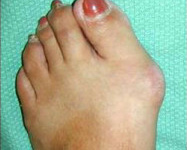 Bunion Foot Surgery Dr Peter Ammon Murdoch Orthopaedic