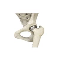 hip surgery Murdoch Orthopaedic