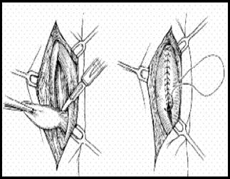 achilles tendonitis Murdoch Orthopaedic