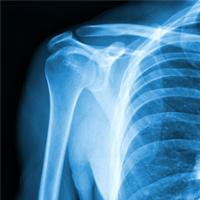 xray shoulder surgery Murdoch Orthopaedic