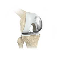 knee surgery Murdoch Orthopaedic