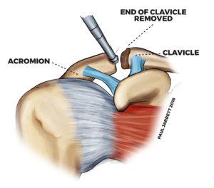 acromioplasty Murdoch Orthopaedic
