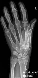 xray Hand surgery Murdoch Orthopaedic