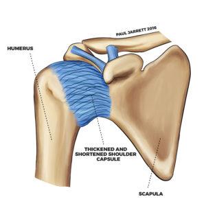 shoulder surgery Murdoch Orthopaedic
