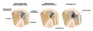 shoulder replacement surgery Murdoch Orthopaedic