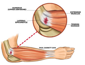elbow surgery Murdoch Orthopaedic