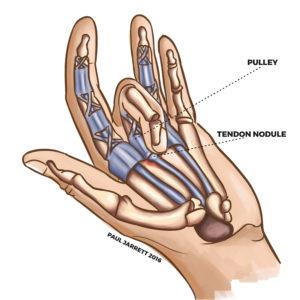 Hand surgery trigger finger Murdoch Orthopaedic