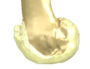 Custom Knee Replacement Dr Gerald Lim