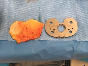 orthopaedic surgery Murdoch Orthopaedic