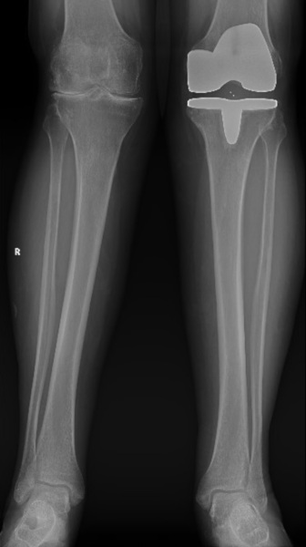 Dr Gerald Lim Knee Replacement